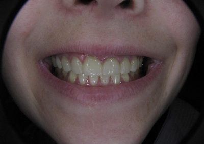 Porcelain (E-Max) Veneers on front teeth 6-11 (After)