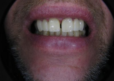 Bridge on teeth 9-11 (After)
