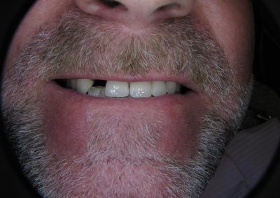 Implant Supported Crown to replace missing anterior tooth (Before)
