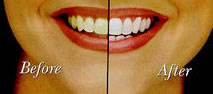Teeth Whitening Dentist MN